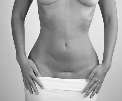 Résultat d'une abdominoplastie