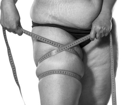 Remodelage des cuisses par cruroplastie