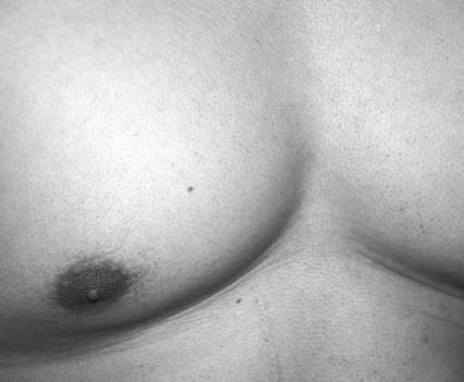 big male breast
