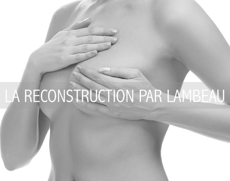 LA RECONSTRUCTION PAR LAMBEAU