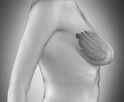 La mammopexie ou lifting des seins - profil