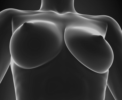 La mammopexie ou lifting des seins