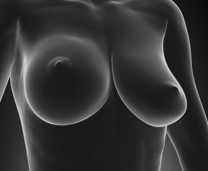La mammopexie pour rehausser un sein