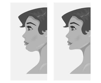 profiloplastie avant-après