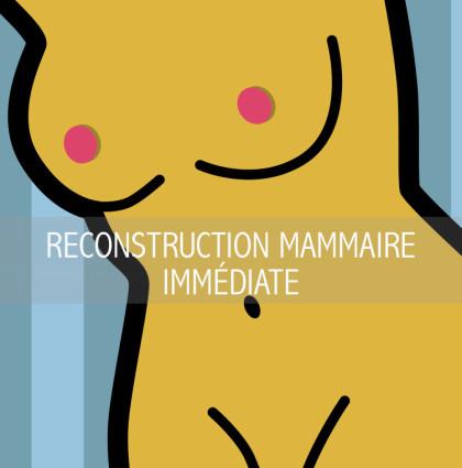 RECONSTRUCTION MAMMAIRE IMMÉDIATE